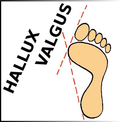 Hallux_Valgus_2