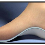 foot-on-orthotic